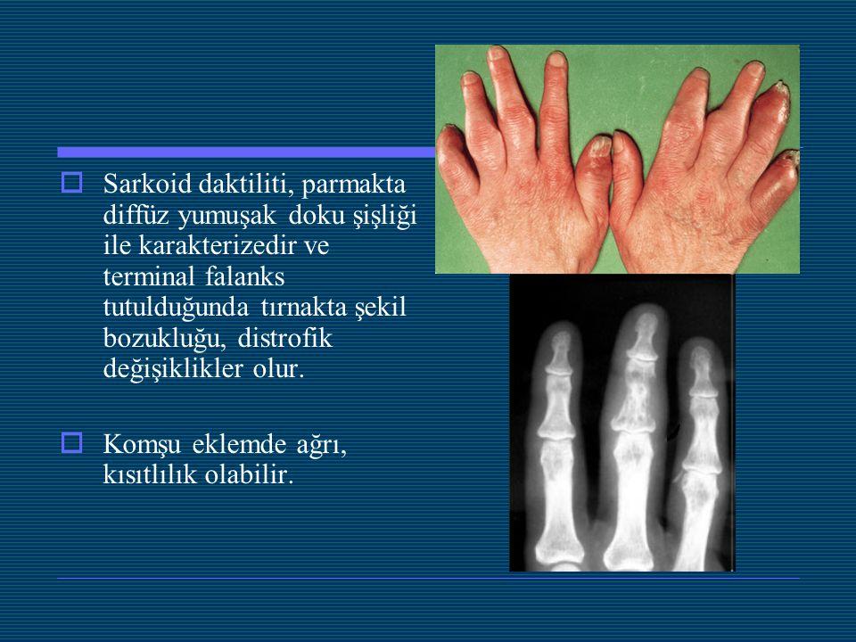  Sarkoid daktiliti, parmakta diffüz yumuşak doku şişliği ile karakterizedir ve terminal falanks tutulduğunda tırnakta şekil bozukluğu, distrofik deği