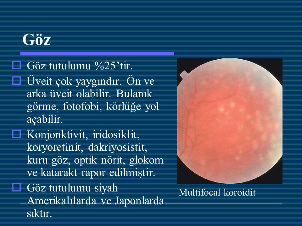 Göz  Göz tutulumu %25'tir.  Üveit çok yaygındır. Ön ve arka üveit olabilir. Bulanık görme, fotofobi, körlüğe yol açabilir.  Konjonktivit, iridosikl