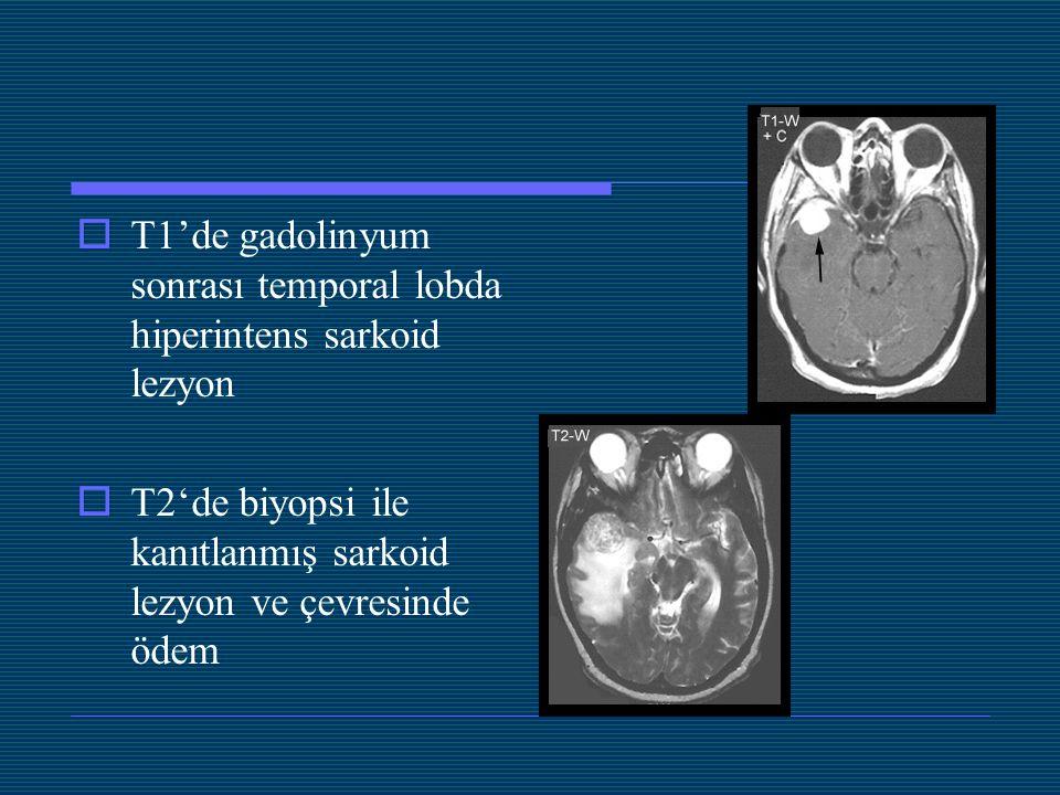  T1'de gadolinyum sonrası temporal lobda hiperintens sarkoid lezyon  T2'de biyopsi ile kanıtlanmış sarkoid lezyon ve çevresinde ödem