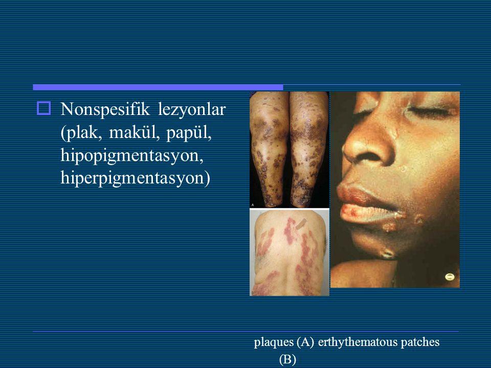  Nonspesifik lezyonlar (plak, makül, papül, hipopigmentasyon, hiperpigmentasyon) plaques (A) erthythematous patches (B)