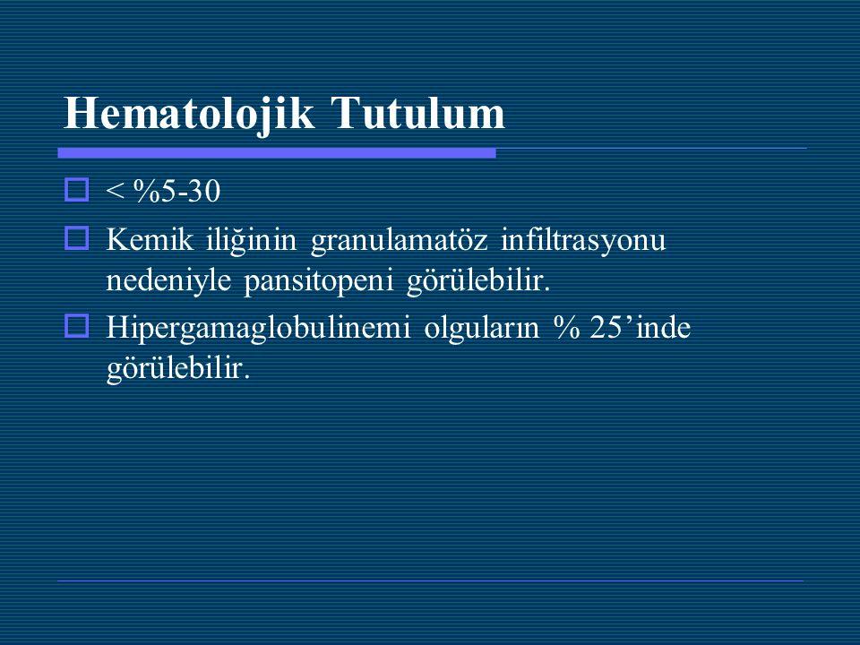 Hematolojik Tutulum  < %5-30  Kemik iliğinin granulamatöz infiltrasyonu nedeniyle pansitopeni görülebilir.  Hipergamaglobulinemi olguların % 25'ind