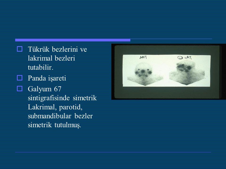  Tükrük bezlerini ve lakrimal bezleri tutabilir.  Panda işareti  Galyum 67 sintigrafisinde simetrik Lakrimal, parotid, submandibular bezler simetri