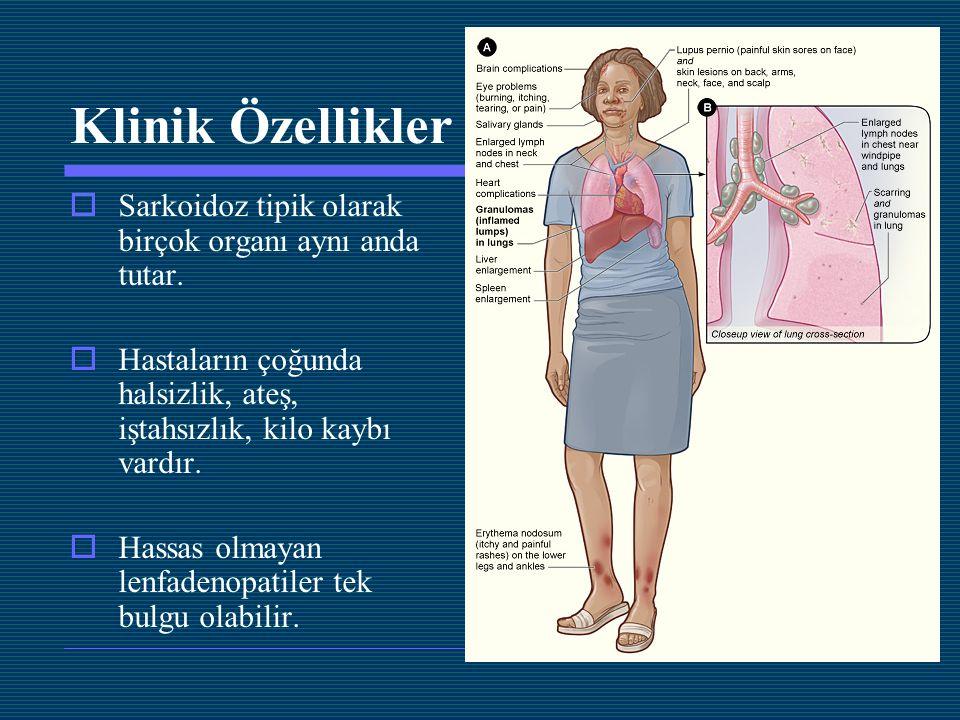 Klinik Özellikler  Sarkoidoz tipik olarak birçok organı aynı anda tutar.  Hastaların çoğunda halsizlik, ateş, iştahsızlık, kilo kaybı vardır.  Hass
