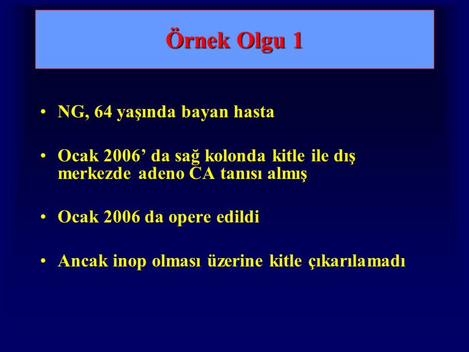 Örnek Olgu 1 NG, 64 yaşında bayan hasta Ocak 2006' da sağ kolonda kitle ile dış merkezde adeno CA tanısı almış Ocak 2006 da opere edildi Ancak inop olması üzerine kitle çıkarılamadı