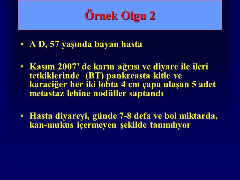 Örnek Olgu 2 A D, 57 yaşında bayan hasta Kasım 2007' de karın ağrısı ve diyare ile ileri tetkiklerinde (BT) pankreasta kitle ve karaciğer her iki lobt