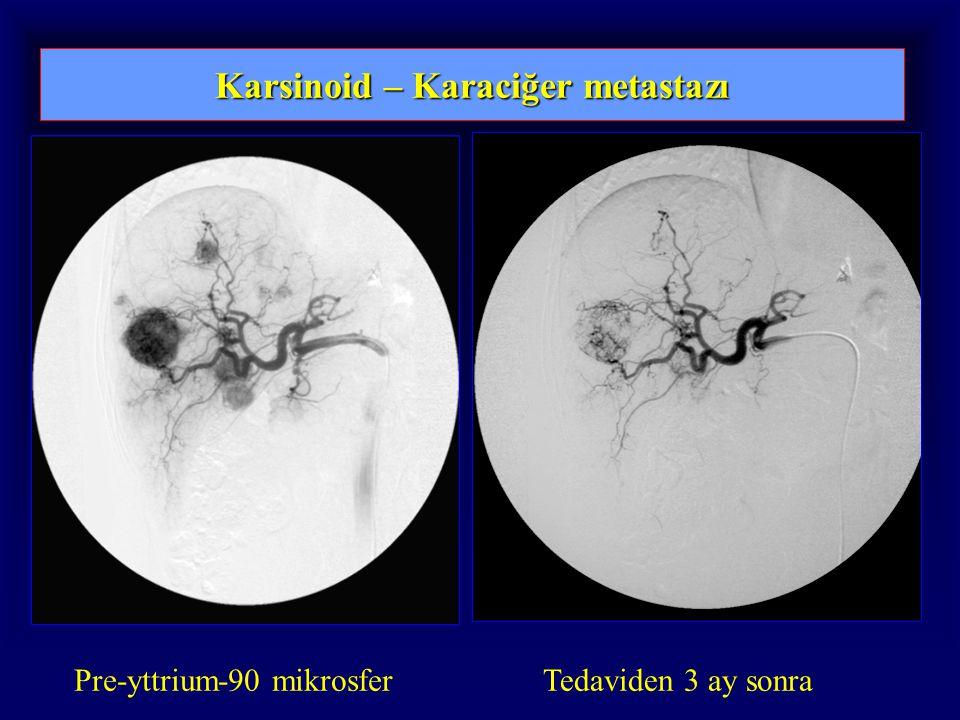 Karsinoid – Karaciğer metastazı Pre-yttrium-90 mikrosferTedaviden 3 ay sonra