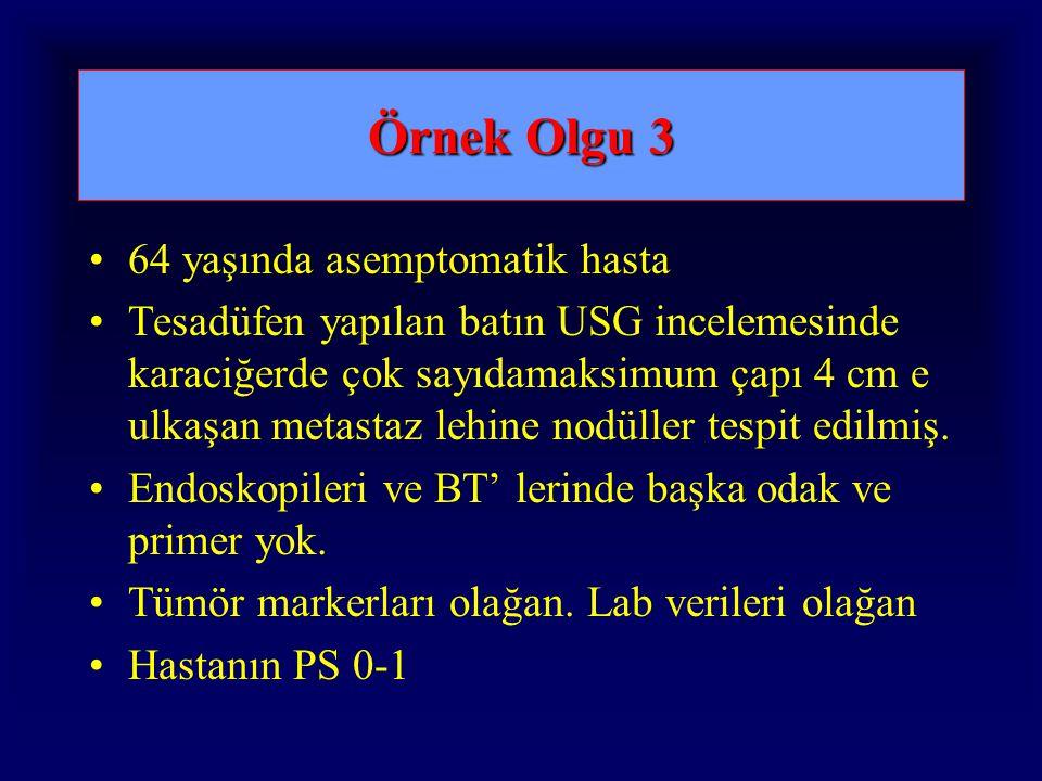 Örnek Olgu 3 64 yaşında asemptomatik hasta Tesadüfen yapılan batın USG incelemesinde karaciğerde çok sayıdamaksimum çapı 4 cm e ulkaşan metastaz lehine nodüller tespit edilmiş.