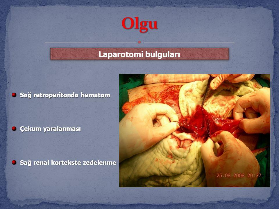 Sağ retroperitonda hematom Sağ retroperitonda hematom Çekum yaralanması Çekum yaralanması Sağ renal kortekste zedelenme Sağ renal kortekste zedelenme Laparotomi bulguları