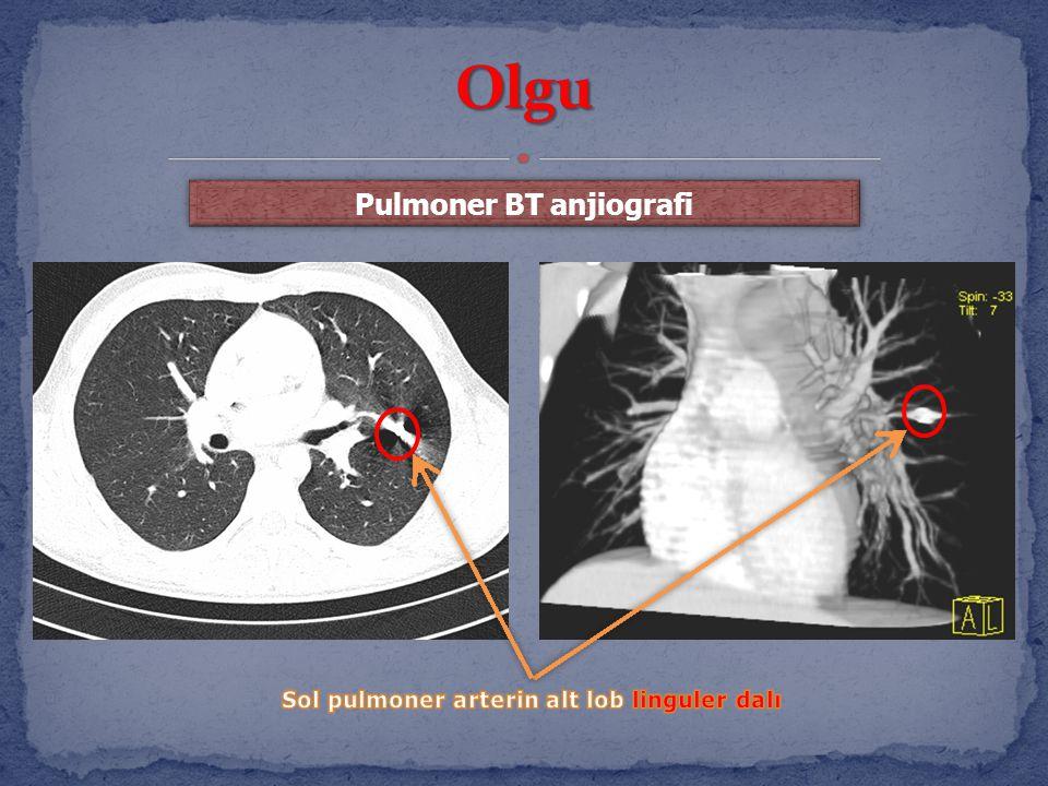 Pulmoner BT anjiografi