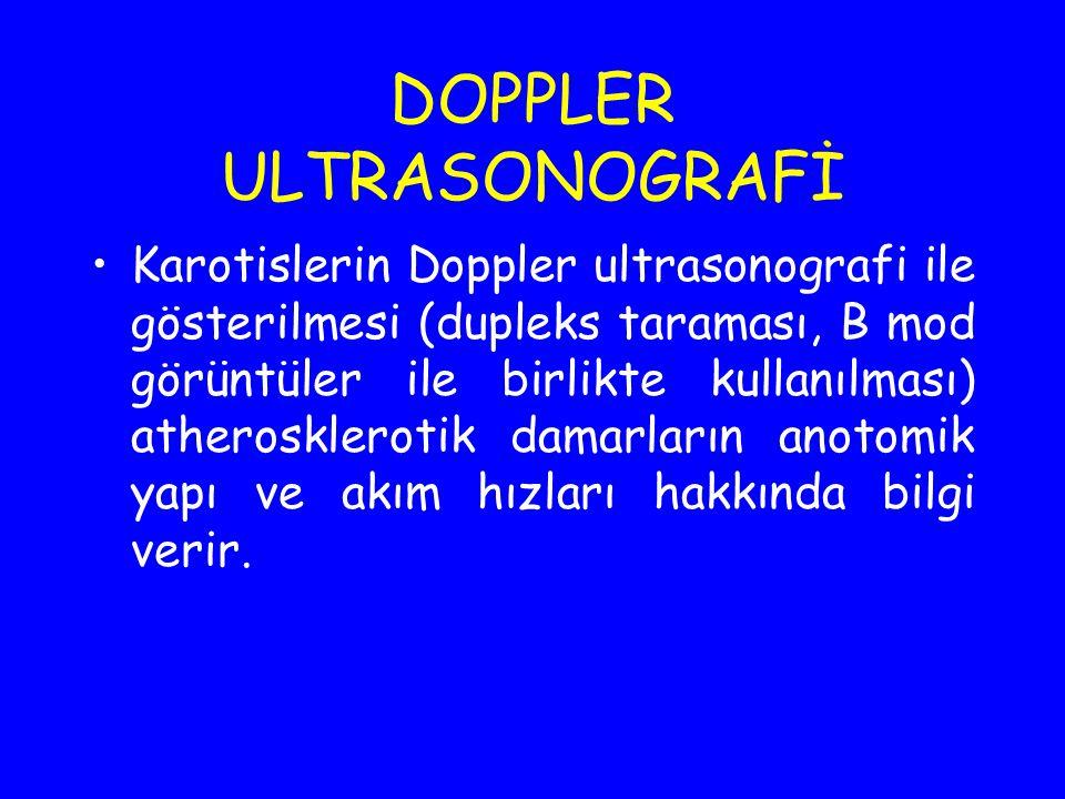 DOPPLER ULTRASONOGRAFİ Karotislerin Doppler ultrasonografi ile gösterilmesi (dupleks taraması, B mod görüntüler ile birlikte kullanılması) atheroskler