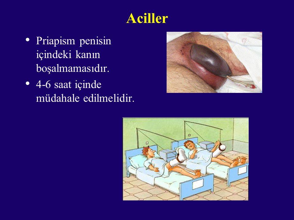 Aciller Priapism penisin içindeki kanın boşalmamasıdır. 4-6 saat içinde müdahale edilmelidir.