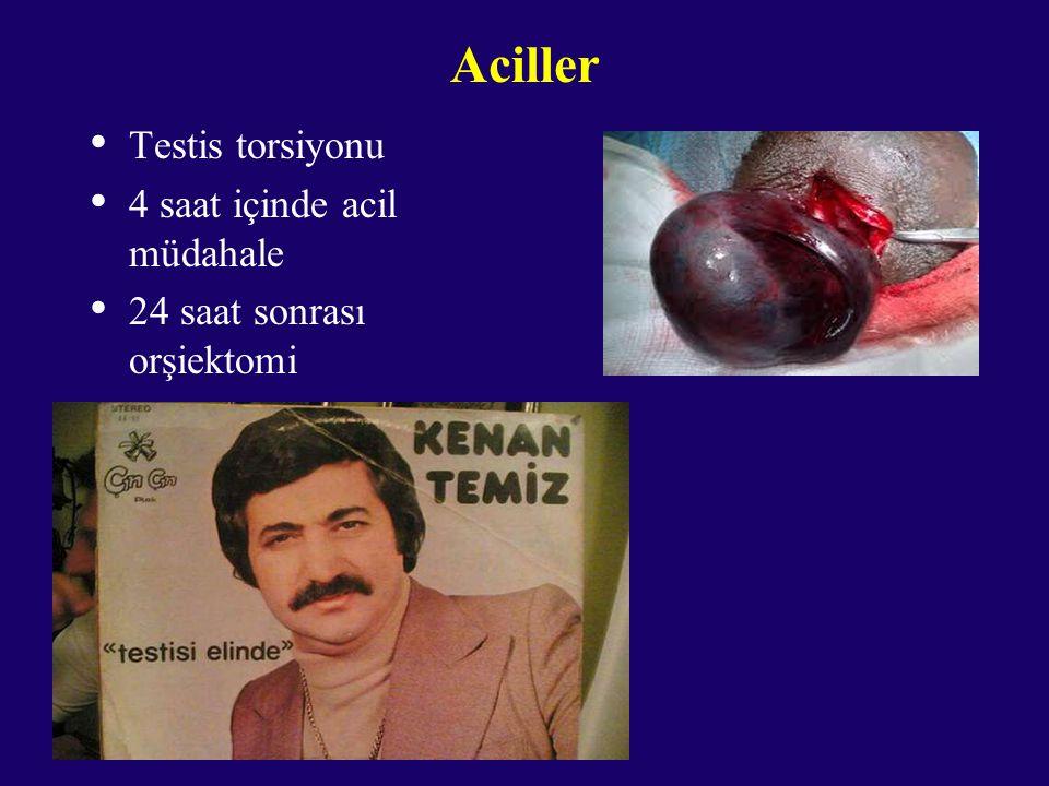 Aciller Testis torsiyonu 4 saat içinde acil müdahale 24 saat sonrası orşiektomi