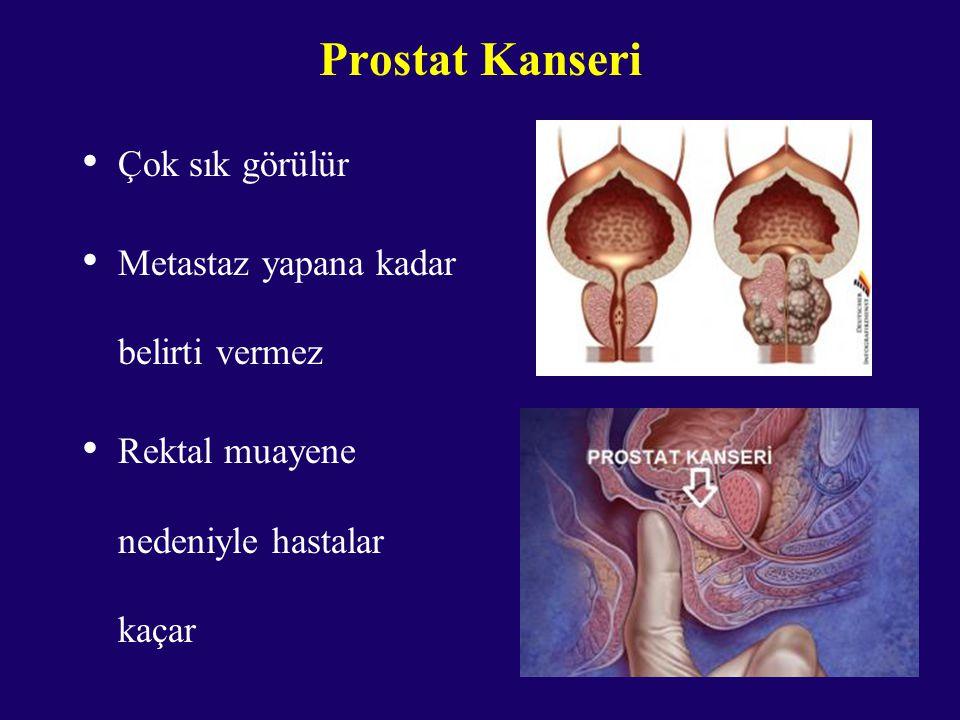Prostat Kanseri Çok sık görülür Metastaz yapana kadar belirti vermez Rektal muayene nedeniyle hastalar kaçar