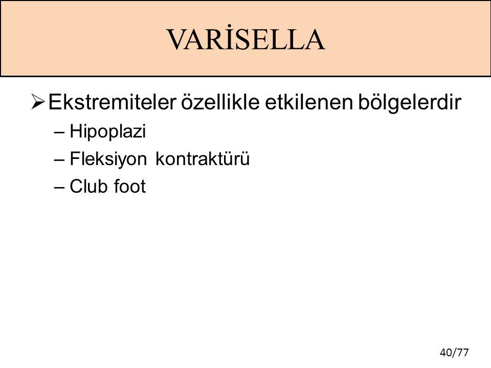 40/77 VARİSELLA  Ekstremiteler özellikle etkilenen bölgelerdir –Hipoplazi –Fleksiyon kontraktürü –Club foot