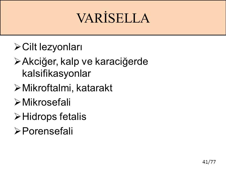 41/77 VARİSELLA  Cilt lezyonları  Akciğer, kalp ve karaciğerde kalsifikasyonlar  Mikroftalmi, katarakt  Mikrosefali  Hidrops fetalis  Porensefal