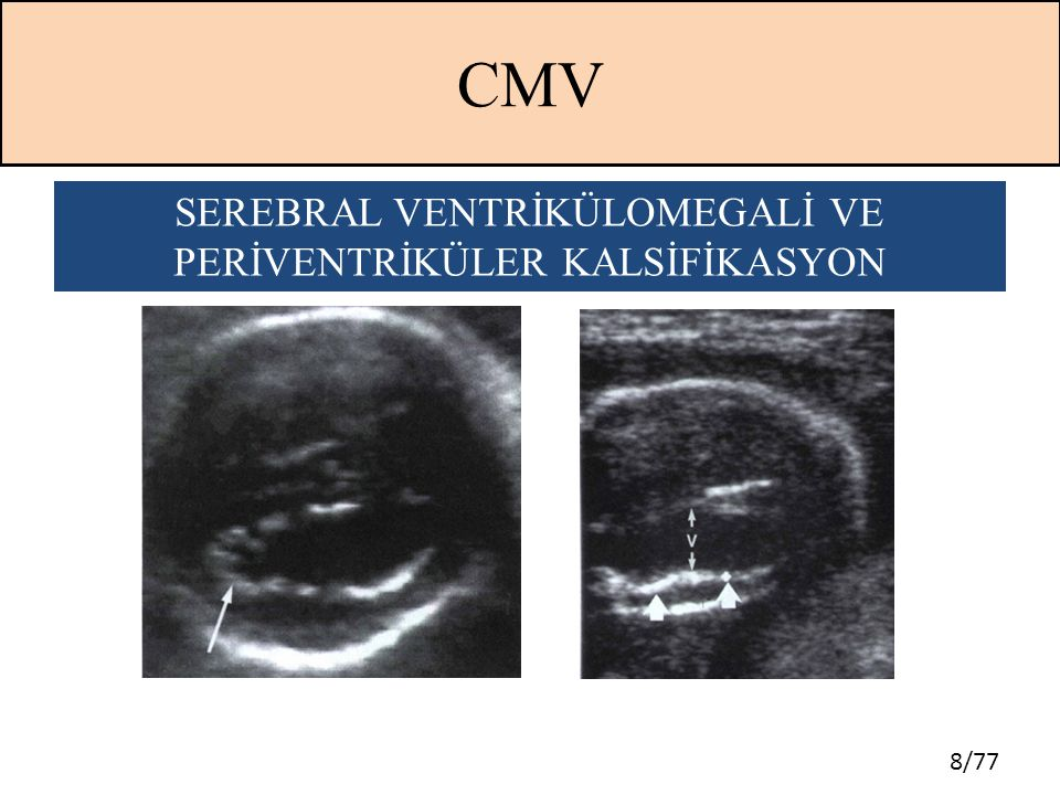 59/77 TOKSOPLAZMOSİS  Sağlıklı gebelerde olguların %90'nı asemptomatiktir  Maternal ve fetal enfeksiyon arasındaki süre 4 ile 16 hafta arasında değişmektedir  Beyin ve göz majör hedef organlardır
