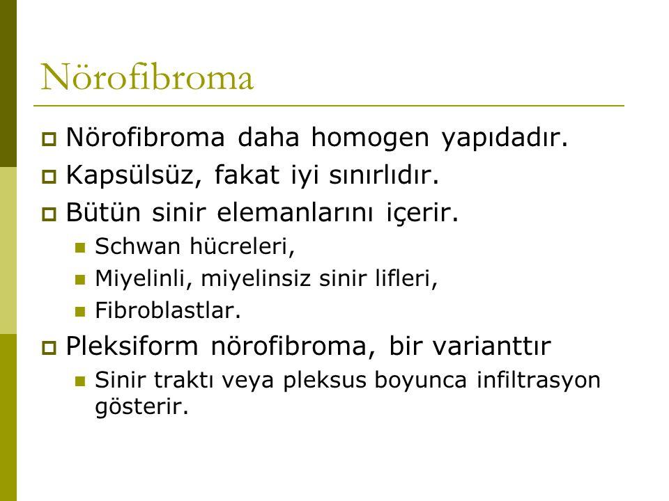 Nörofibroma  Nörofibroma daha homogen yapıdadır.  Kapsülsüz, fakat iyi sınırlıdır.  Bütün sinir elemanlarını içerir. Schwan hücreleri, Miyelinli, m