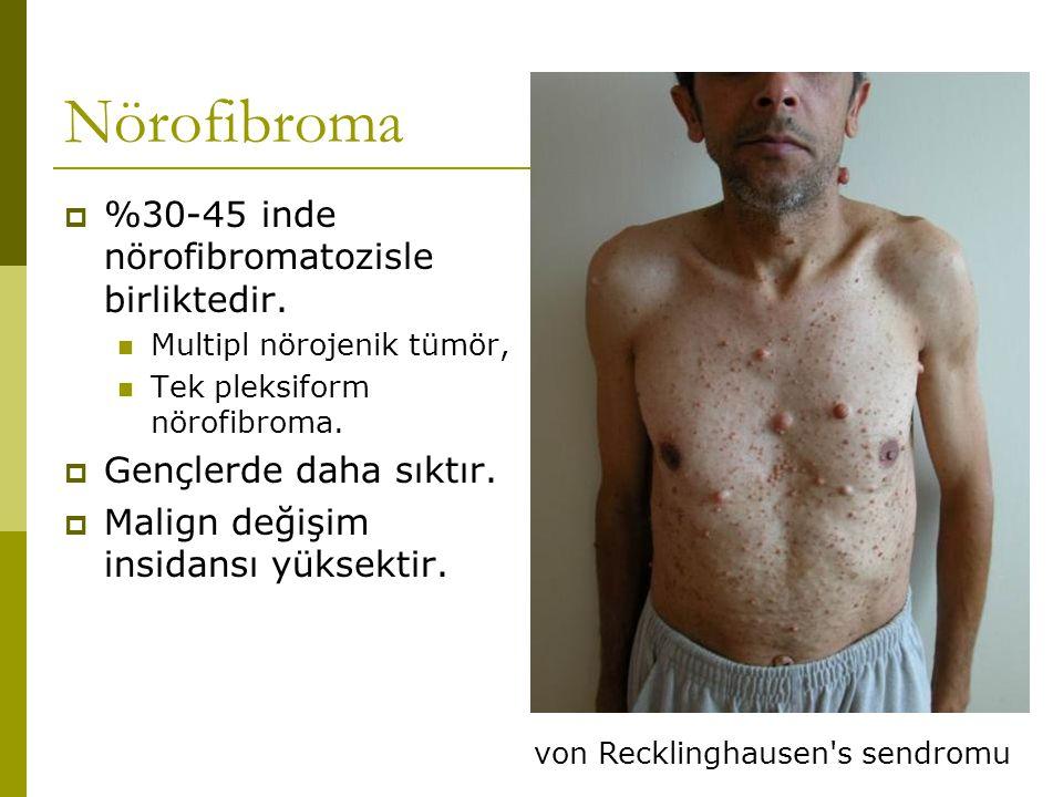 Nörofibroma  %30-45 inde nörofibromatozisle birliktedir. Multipl nörojenik tümör, Tek pleksiform nörofibroma.  Gençlerde daha sıktır.  Malign değiş
