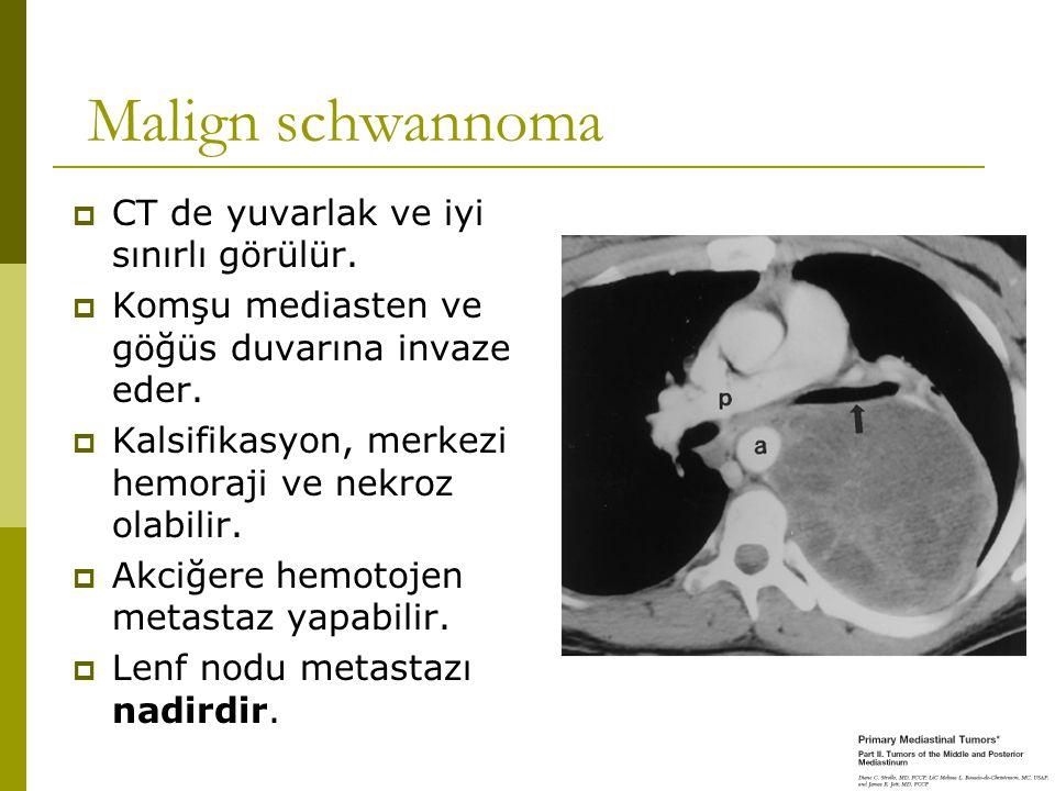 Malign schwannoma  CT de yuvarlak ve iyi sınırlı görülür.  Komşu mediasten ve göğüs duvarına invaze eder.  Kalsifikasyon, merkezi hemoraji ve nekro