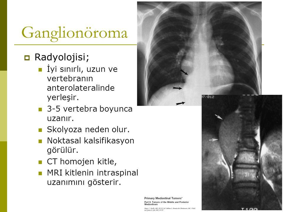 Ganglionöroma  Radyolojisi; İyi sınırlı, uzun ve vertebranın anterolateralinde yerleşir. 3-5 vertebra boyunca uzanır. Skolyoza neden olur. Noktasal k