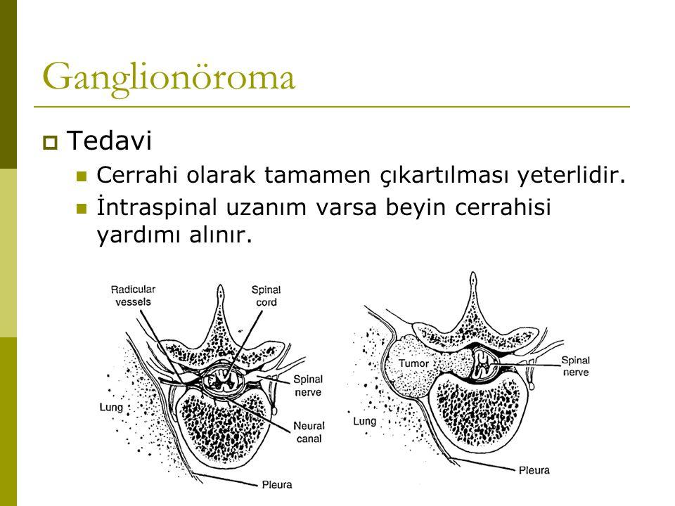 Ganglionöroma  Tedavi Cerrahi olarak tamamen çıkartılması yeterlidir. İntraspinal uzanım varsa beyin cerrahisi yardımı alınır.
