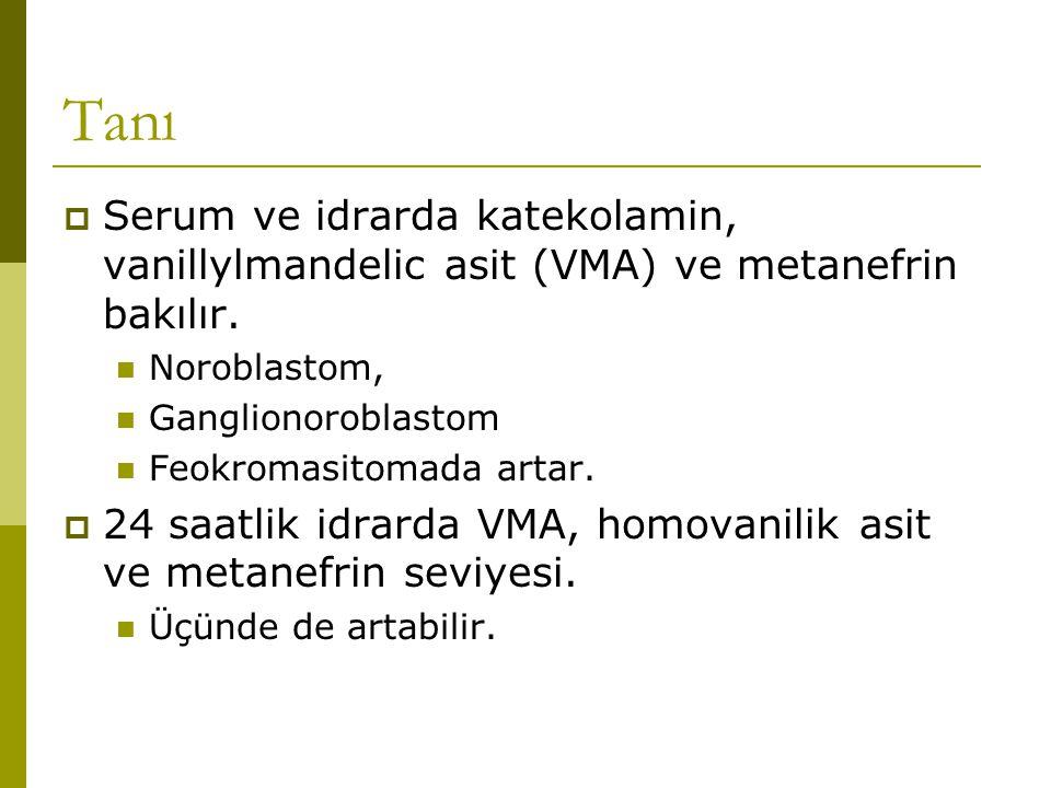 Tanı  Nükler tıp; I 131 iodine metaiodobenzylguanidine (MIBG)  Feokromositoma,  Noroblastoma,  Ganglinoroblastoma.