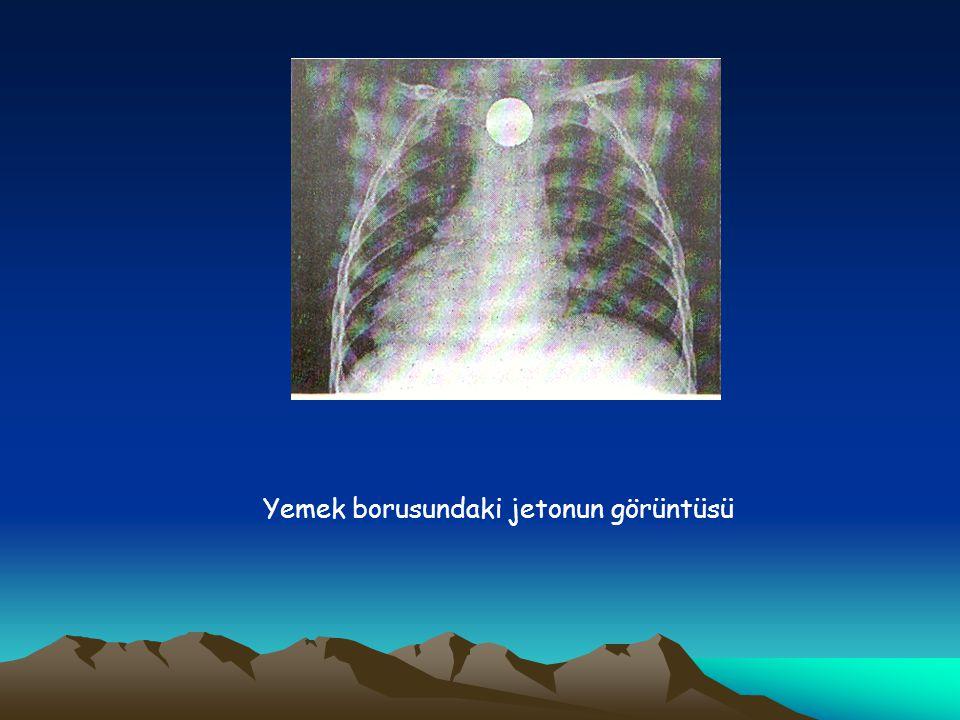 Yabancı Cisim Kaçmasının Komplikasyonları Ölüm (%10 olguda), bronşit, bronkopnömoni, bronkospazm, pnömoni, pnömotoraks ile ayrıca Kulak iltihabı, kanama, rinit, delinme ve yutkunma zorluğu sayılabilir.