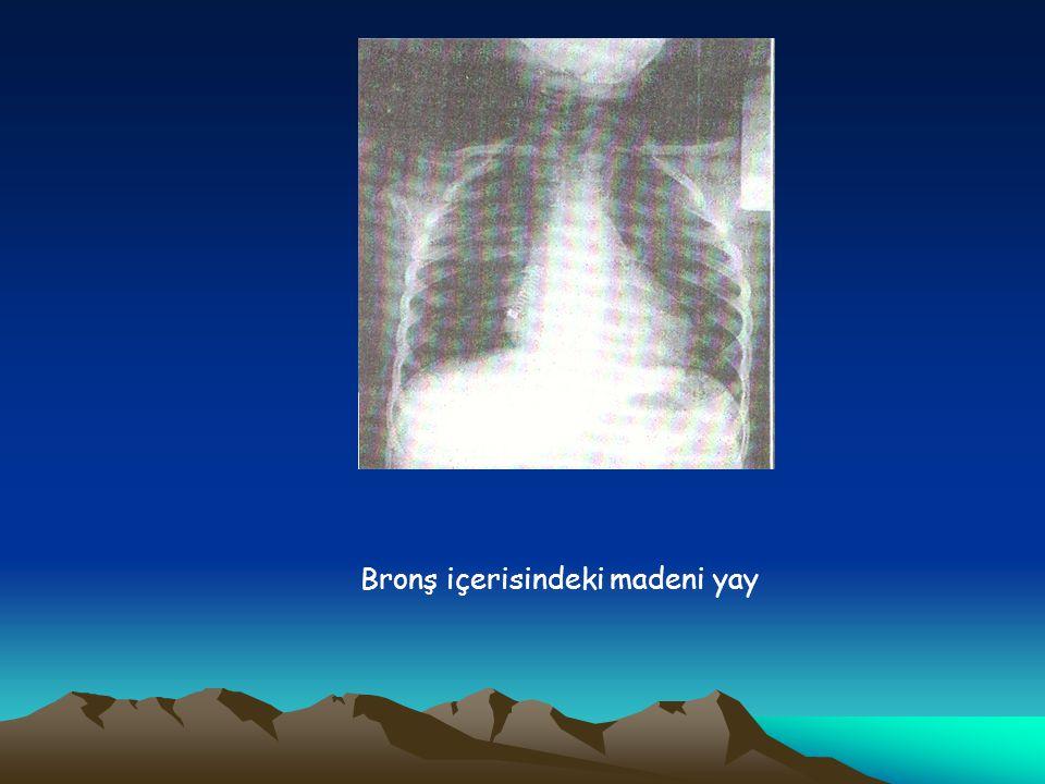 Tedavi İlk yardımda manevralar (Sırt vuruşları ve karın müdahaleleri yalnızca tam tıkanıklıkta) Endoskopik uygulamalar Bronkoskopi