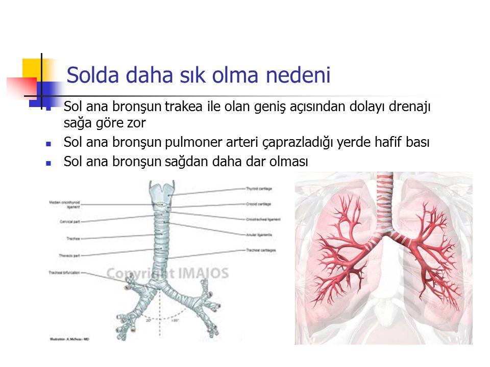 Solda daha sık olma nedeni Sol ana bronşun trakea ile olan geniş açısından dolayı drenajı sağa göre zor Sol ana bronşun pulmoner arteri çaprazladığı y