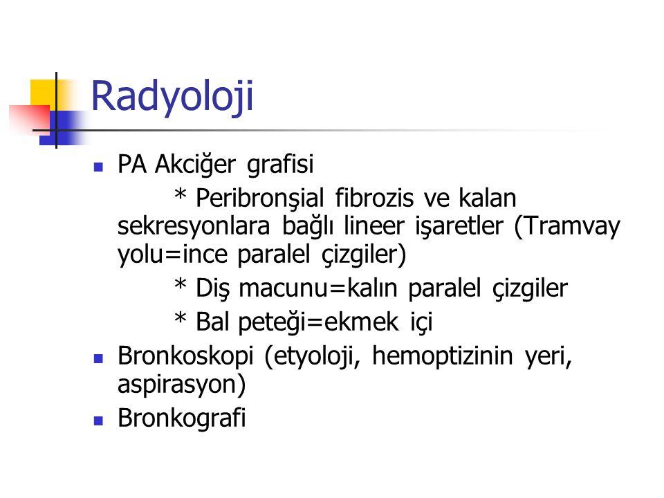 Radyoloji PA Akciğer grafisi * Peribronşial fibrozis ve kalan sekresyonlara bağlı lineer işaretler (Tramvay yolu=ince paralel çizgiler) * Diş macunu=k