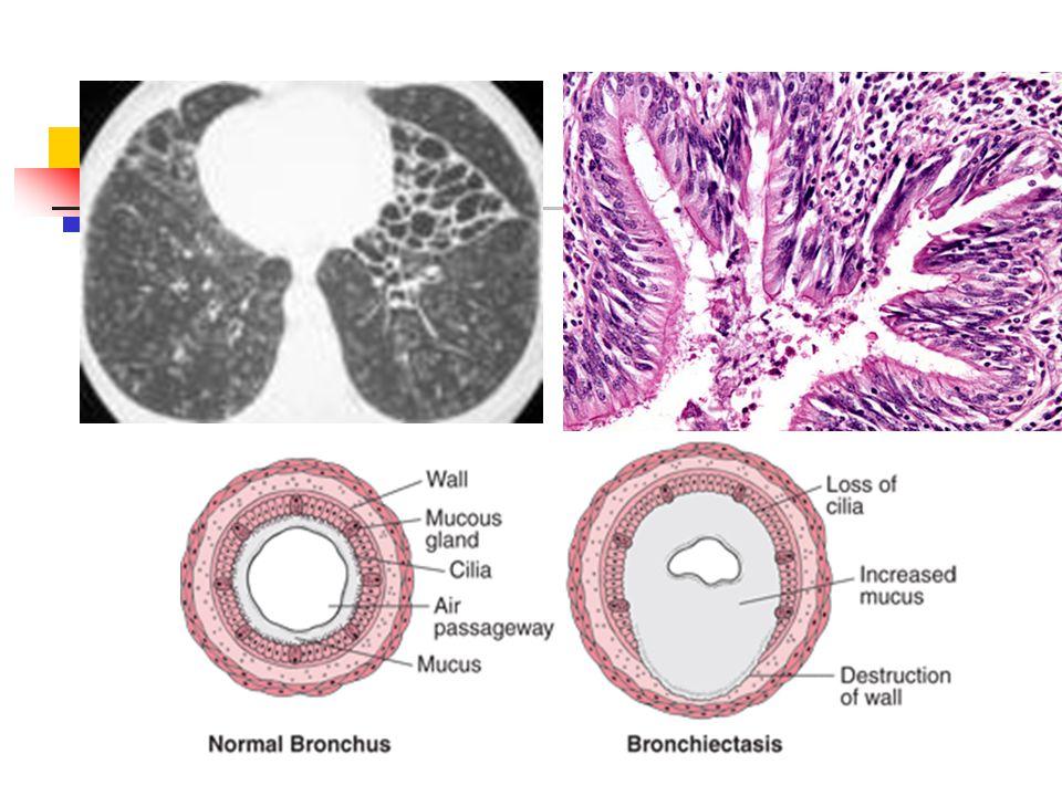 Etyoloji 1)-Kazanılmış -Bronkopulmoner enf (%30-60), -Bronş obstruksiyonu ybc cisim asp tm hiler lap %5-10 -diğer (rekürren asp pnömonisi,irritan madde inh.) 2)Konjenital -anatomik defektler(trakeamalazi,bronkomalazi) -vasküler defektler (intralober sekestrasyon) -silier bozukluklar (kartagener send,immotil silia ) -Immun yetm (Ig G ve Ig A yetmezliği)