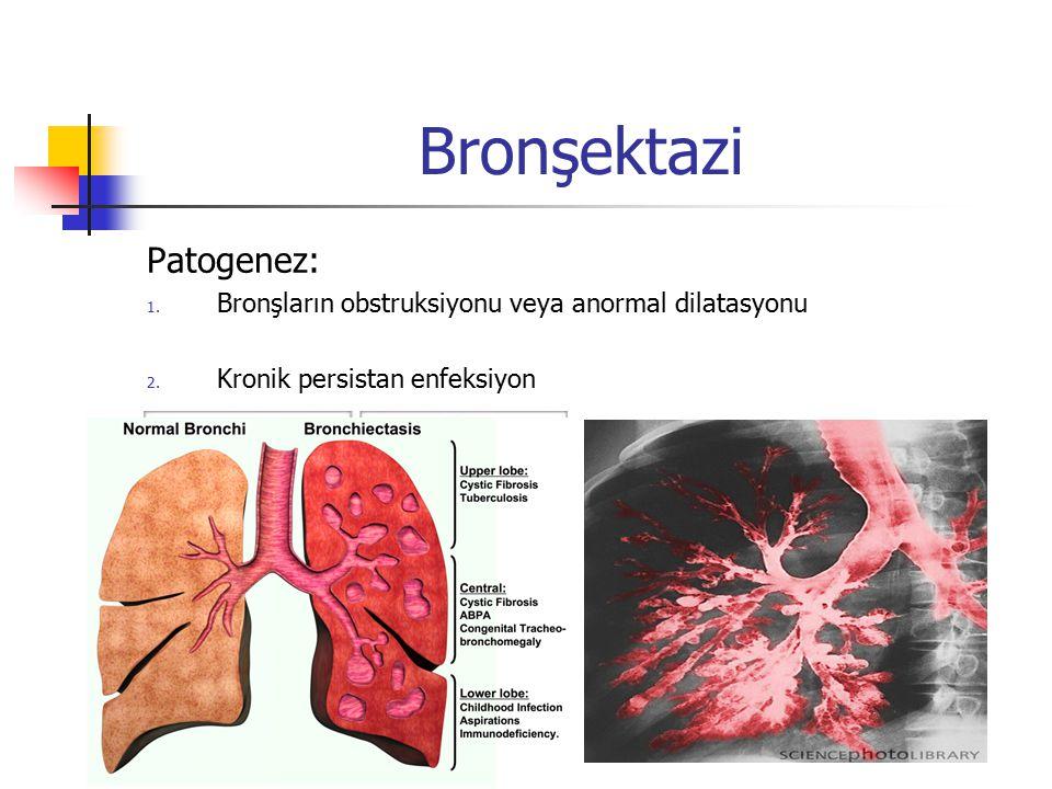 Bronşektazi Patogenez: 1. Bronşların obstruksiyonu veya anormal dilatasyonu 2. Kronik persistan enfeksiyon