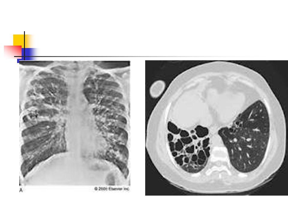 Tanı Akciğer grafisi → pnömonitis evresinde pnömonik infiltrasyon, kavite, hava-sıvı seviyesi, atelektazi, pnömotoraks, plevral kalınlaşma BT Bronkoskopi (altta yatan neden ve aspirasyon)