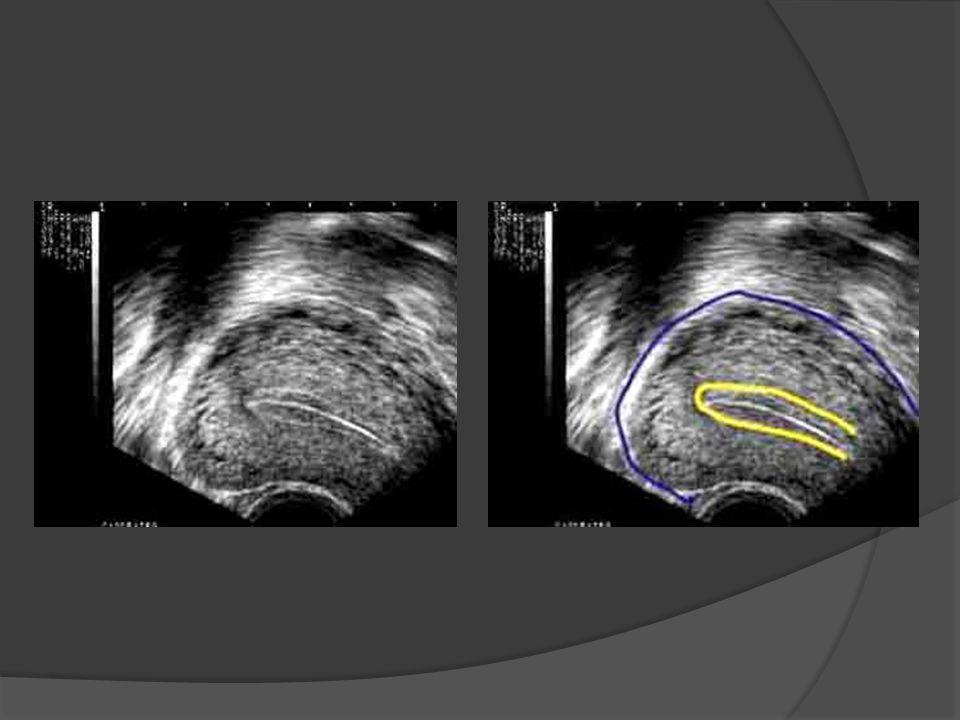 Fertilitenin geri dönüşü Sterilizasyon kadar yüksek etkinliğe sahip olmasına rağmen kullanıcılarda doğurganlık tamamen geri dönüşlüdür.