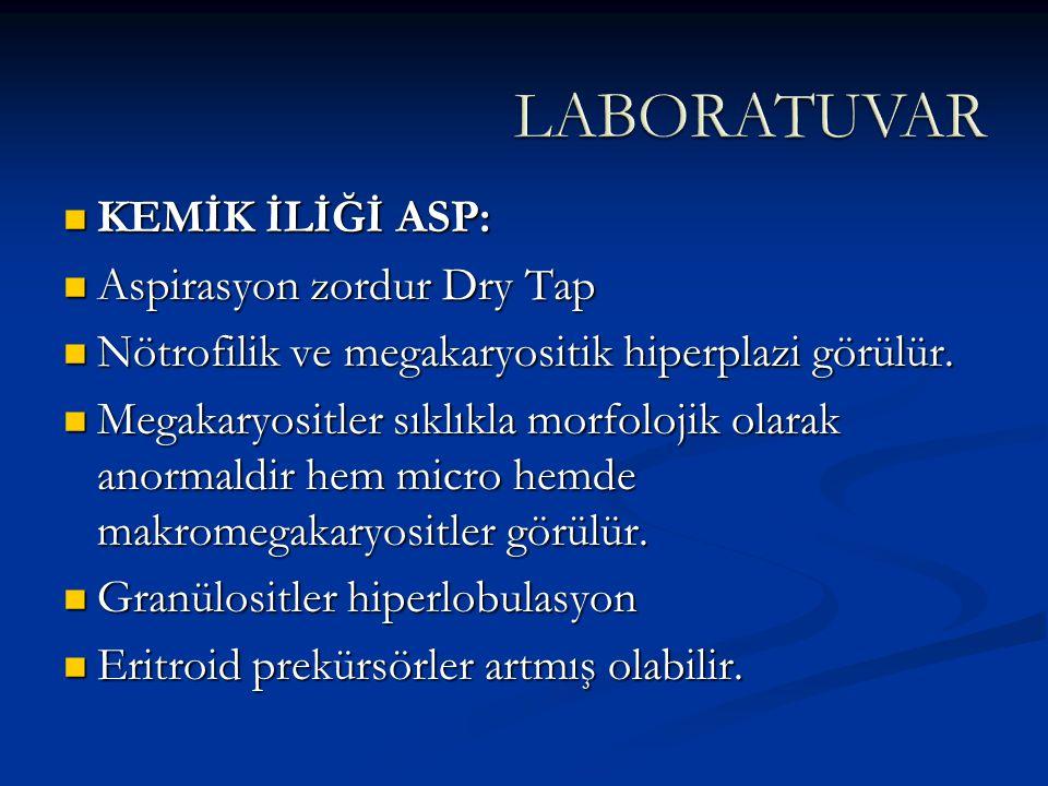 KEMİK İLİĞİ ASP: KEMİK İLİĞİ ASP: Aspirasyon zordur Dry Tap Aspirasyon zordur Dry Tap Nötrofilik ve megakaryositik hiperplazi görülür. Nötrofilik ve m