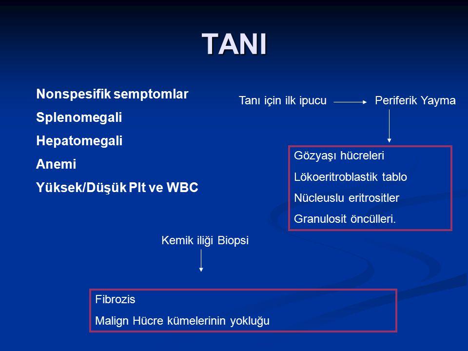 TANI Nonspesifik semptomlar Splenomegali Hepatomegali Anemi Yüksek/Düşük Plt ve WBC Tanı için ilk ipucuPeriferik Yayma Gözyaşı hücreleri Lökoeritrobla