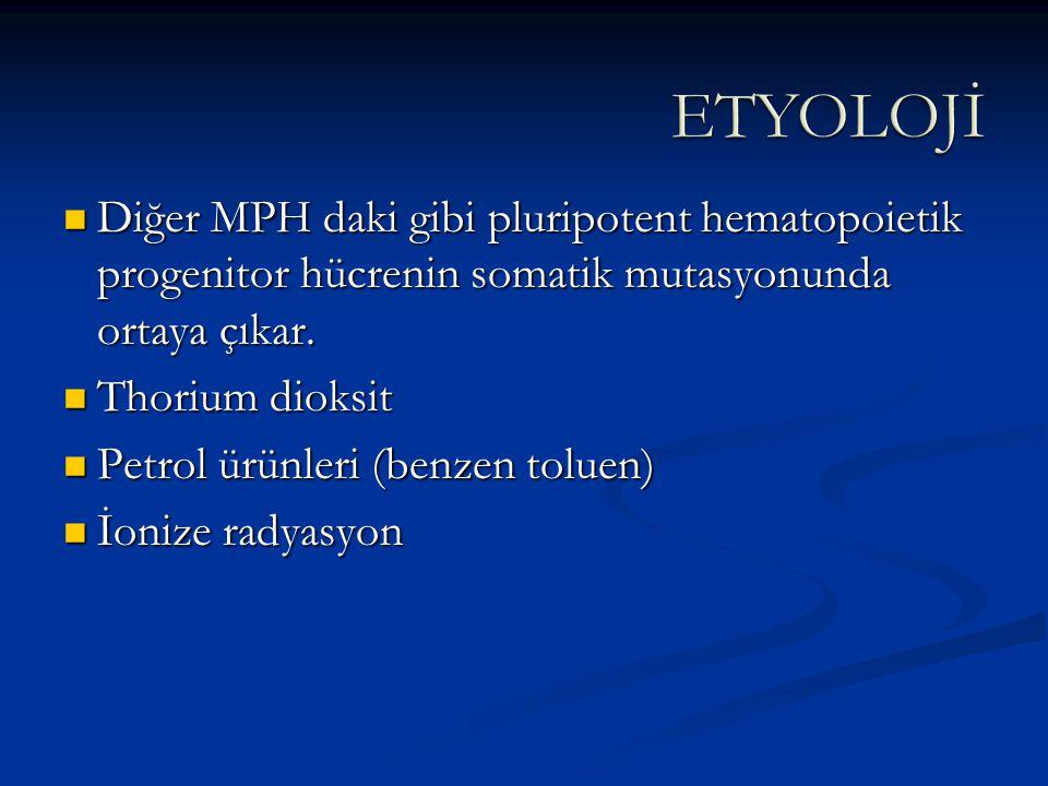 Periferik Yayma: -Anizositoz -Poikilositoz -Gözyaşı Hücreleri -Nükleuslu eritrositler.