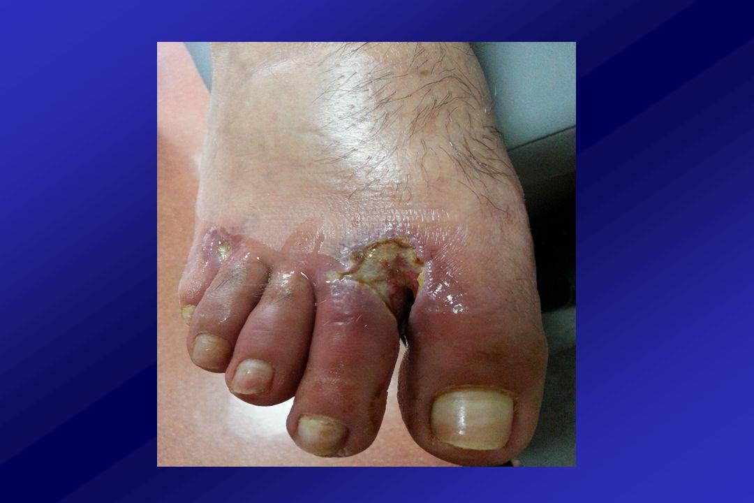 Diyabetik Ayak Kapiller mikroanjiyopati İyileşmeyen yaralar / Nekrotik parmaklar Ağrı - / +