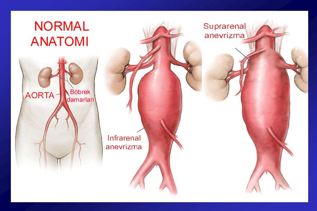 Abdominal Aort Anevrizması Batın USG Bilgisayarlı tomografi ( torakoabdominal ) MR 4.5 – 5.5 cm: Yıllık rüptür şansı % 5 - 7 –Takip : Hipertansiyonun kontrolü ve 6 ay ara ile BT –Cerrahi 6 cm ve üzeri: Yıllık rüptür şansı > % 20 –Cerrahi ve ya Endovasküler