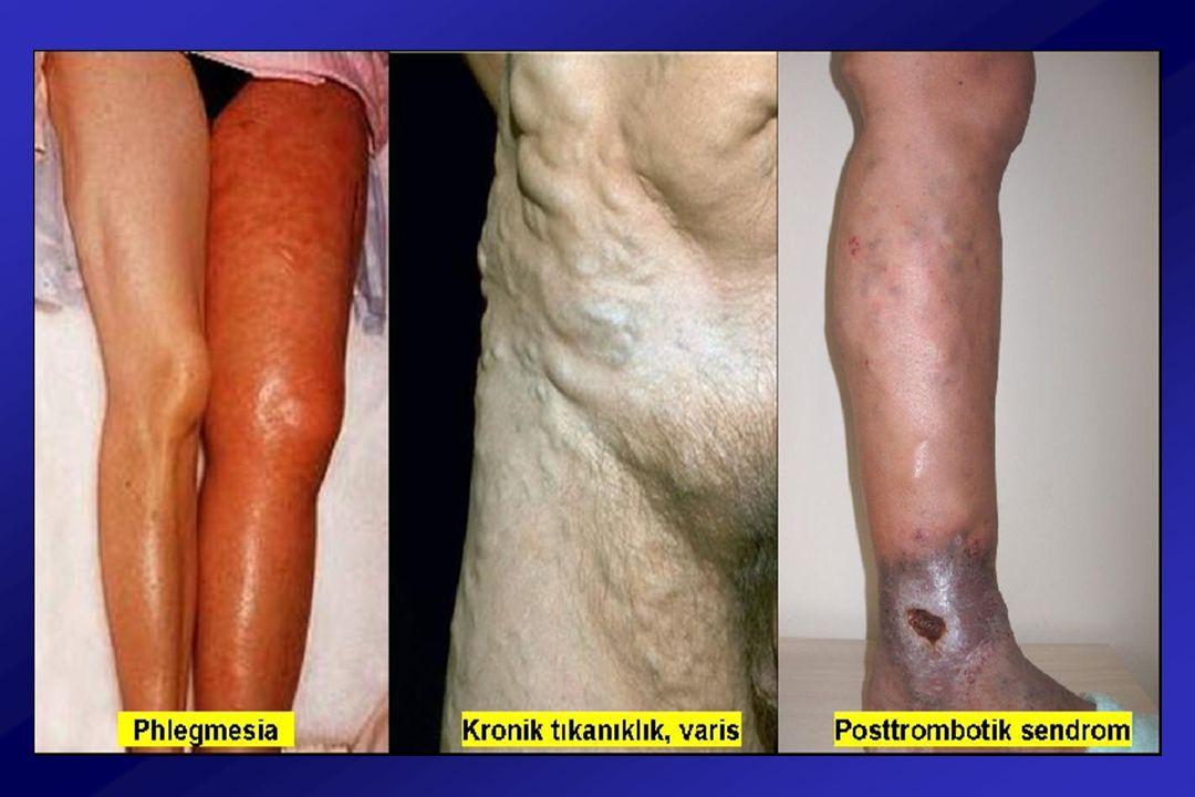 Venöz Hastalıklarda Tedavi CERRAHİ TEDAVİ Yüzeyel venlerin yok edilmesi - Striping - Skleroterapi, köpük - Laser, radyofrekans Köprü venlerinin yok edilmesi
