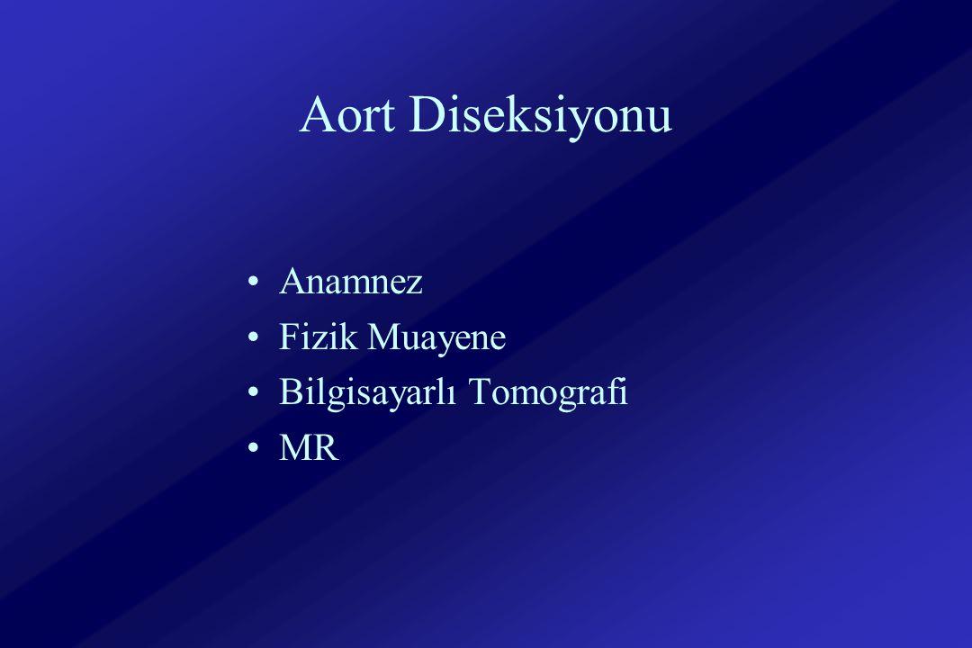 Aort Diseksiyonu Anamnez Fizik Muayene Bilgisayarlı Tomografi MR