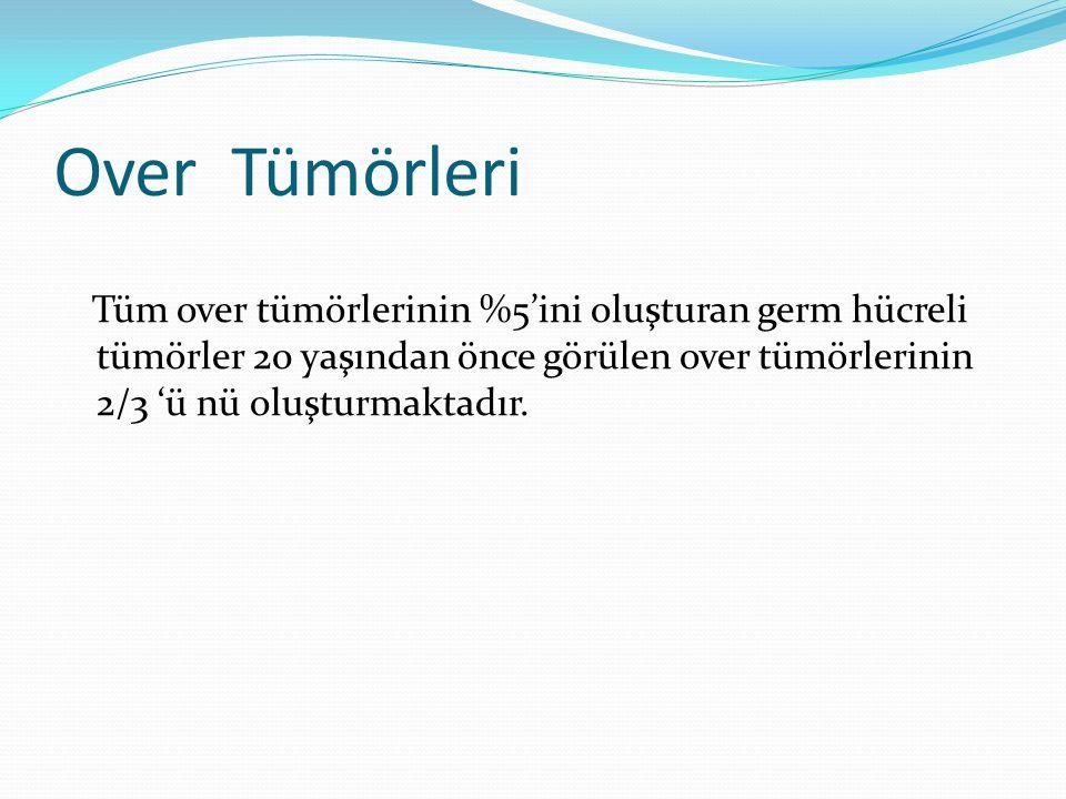 Over Tümörleri Tüm over tümörlerinin %5'ini oluşturan germ hücreli tümörler 20 yaşından önce görülen over tümörlerinin 2/3 'ü nü oluşturmaktadır.