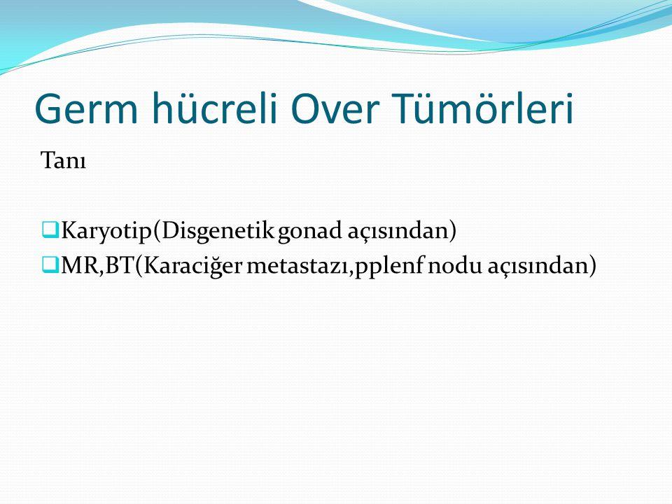 Germ hücreli Over Tümörleri Tanı  Karyotip(Disgenetik gonad açısından)  MR,BT(Karaciğer metastazı,pplenf nodu açısından)