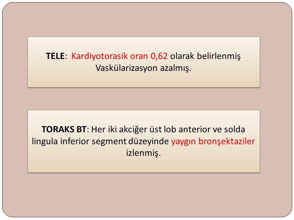 TELE: Kardiyotorasik oran 0,62 olarak belirlenmiş Vaskülarizasyon azalmış. TELE: Kardiyotorasik oran 0,62 olarak belirlenmiş Vaskülarizasyon azalmış.