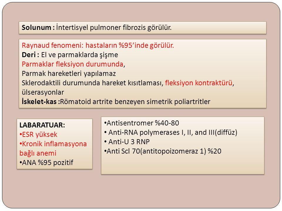 Solunum : İntertisyel pulmoner fibrozis görülür. LABARATUAR: ESR yüksek Kronik inflamasyona bağlı anemi ANA %95 pozitif LABARATUAR: ESR yüksek Kronik