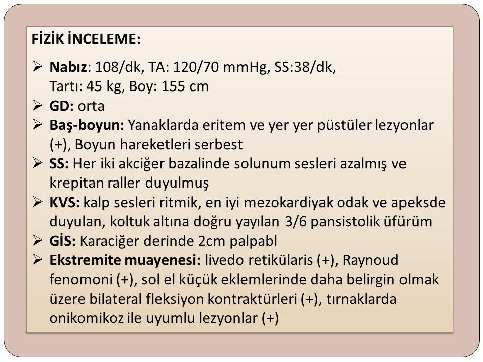 LABORATUAR 1 Kreatinin: 0,5 mg/dl Na:138 mEq/L K:4,2 mEq/L Ca: 9.5 mg/dl P: 2,4 mg/dl AST:32U/L ALT: 25 U/L GGT: 59 U/L ALP: 190 U/L Kreatinin: 0,5 mg/dl Na:138 mEq/L K:4,2 mEq/L Ca: 9.5 mg/dl P: 2,4 mg/dl AST:32U/L ALT: 25 U/L GGT: 59 U/L ALP: 190 U/L Hb: 10,6 gr/dl Hct: %31,9 MCV: 76,7 fL WBC:10900/mm³ Plt: 254000/mm³ Sedim: 24 mm/st CRP: 7,7 mg/l Glukoz:96 mg/dl BUN:23 mg/dl Hb: 10,6 gr/dl Hct: %31,9 MCV: 76,7 fL WBC:10900/mm³ Plt: 254000/mm³ Sedim: 24 mm/st CRP: 7,7 mg/l Glukoz:96 mg/dl BUN:23 mg/dl