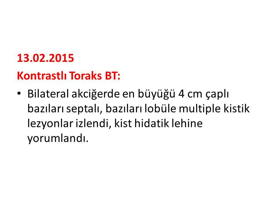 13.02.2015 Kontrastlı Toraks BT: Bilateral akciğerde en büyüğü 4 cm çaplı bazıları septalı, bazıları lobüle multiple kistik lezyonlar izlendi, kist hidatik lehine yorumlandı.