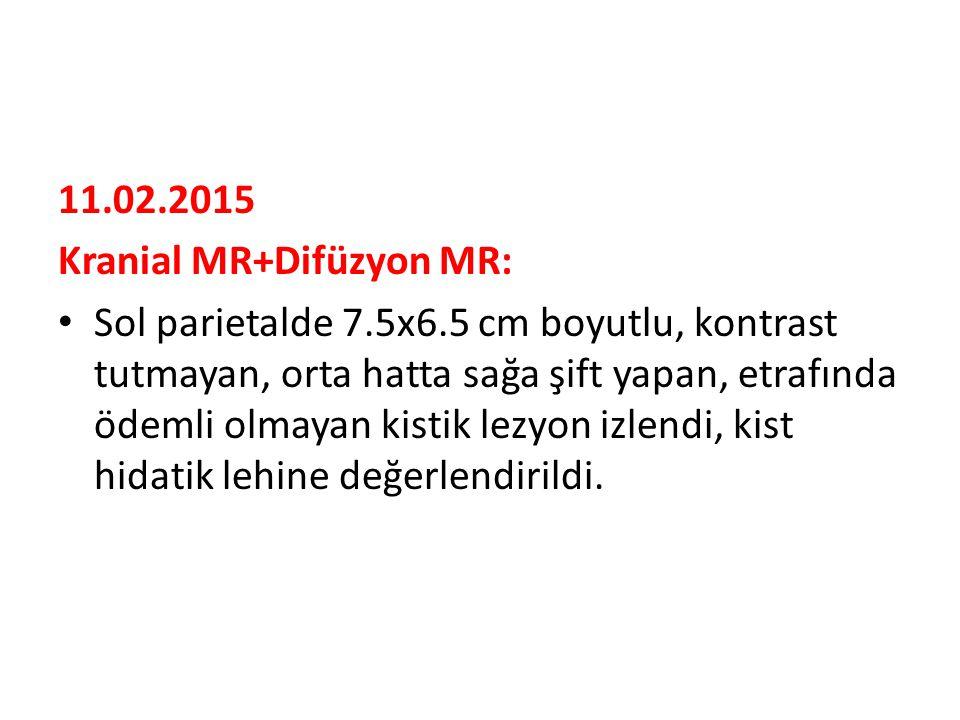 11.02.2015 Kranial MR+Difüzyon MR: Sol parietalde 7.5x6.5 cm boyutlu, kontrast tutmayan, orta hatta sağa şift yapan, etrafında ödemli olmayan kistik lezyon izlendi, kist hidatik lehine değerlendirildi.