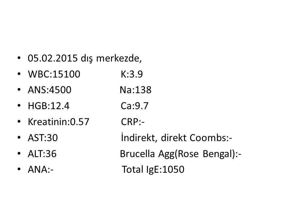 05.02.2015 dış merkezde, WBC:15100 K:3.9 ANS:4500 Na:138 HGB:12.4 Ca:9.7 Kreatinin:0.57 CRP:- AST:30 İndirekt, direkt Coombs:- ALT:36 Brucella Agg(Rose Bengal):- ANA:- Total IgE:1050
