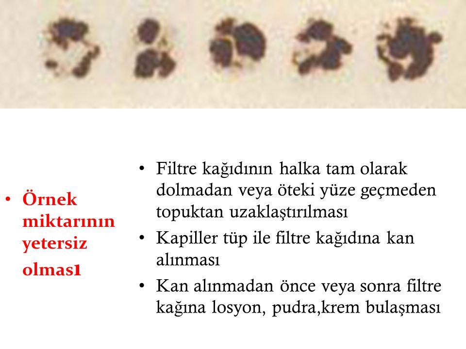 Örnek miktarının yetersiz olmas ı Filtre ka ğ ıdının halka tam olarak dolmadan veya öteki yüze geçmeden topuktan uzakla ş tırılması Kapiller tüp ile f
